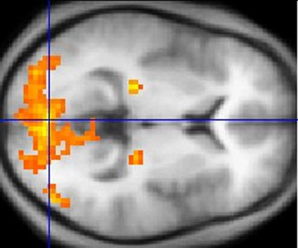 A functional magnetic resonance imaging scan. NeuroscienceNews image is adapted from the Rutgers press release.